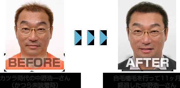 中野浩一】伝説のミスター ...